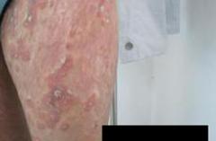 常州患者咨询:有没有治疗牛皮癣的特效药