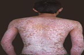 牛皮癣不及时治疗会给患者带来多严重的后果?